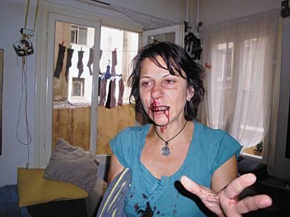 Τα ΜΑΤ της έσπασαν δόντια και χέρια μέσα στο σπίτι της